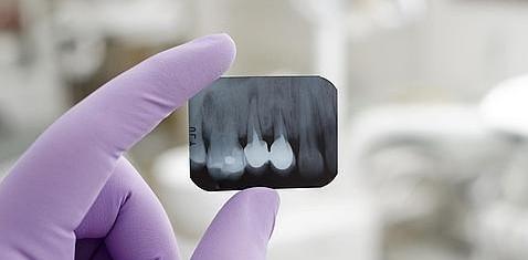 Implantes dentales ¿Son todos Iguales?