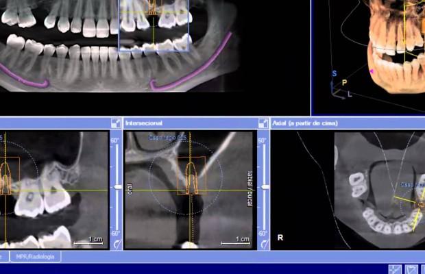 Radiologia Tridimensional en 3D. TAC y RX Digital.