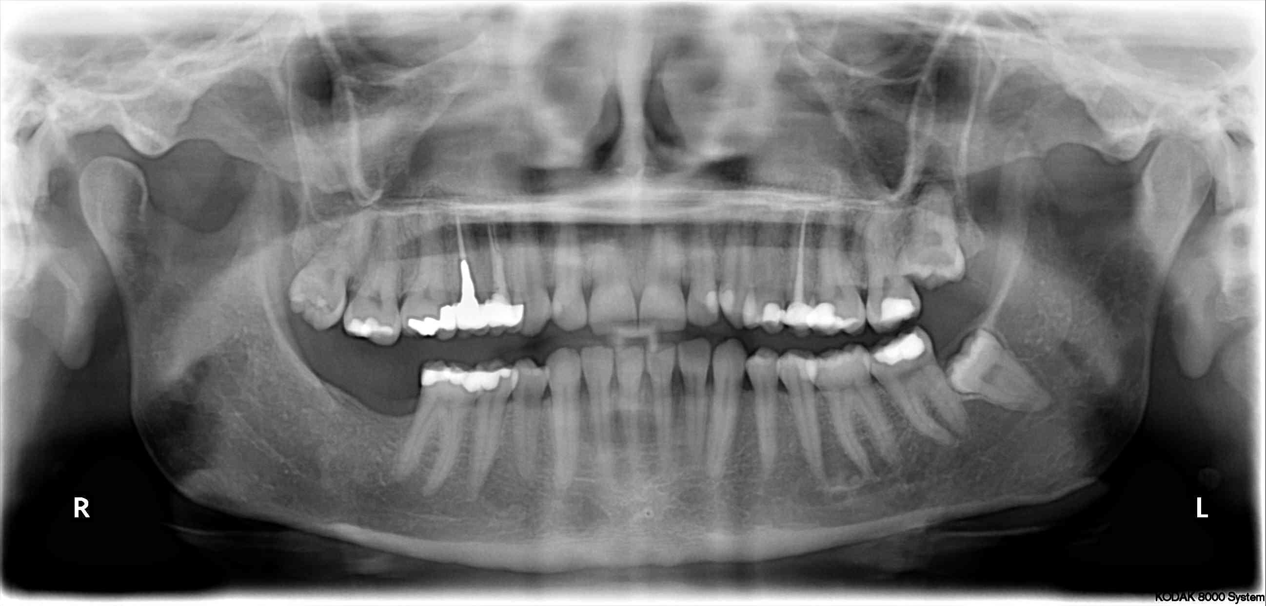 La importancia de la panoramica para realizar un diagnostico correcto.