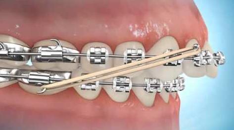Los elásticos en Ortodoncia