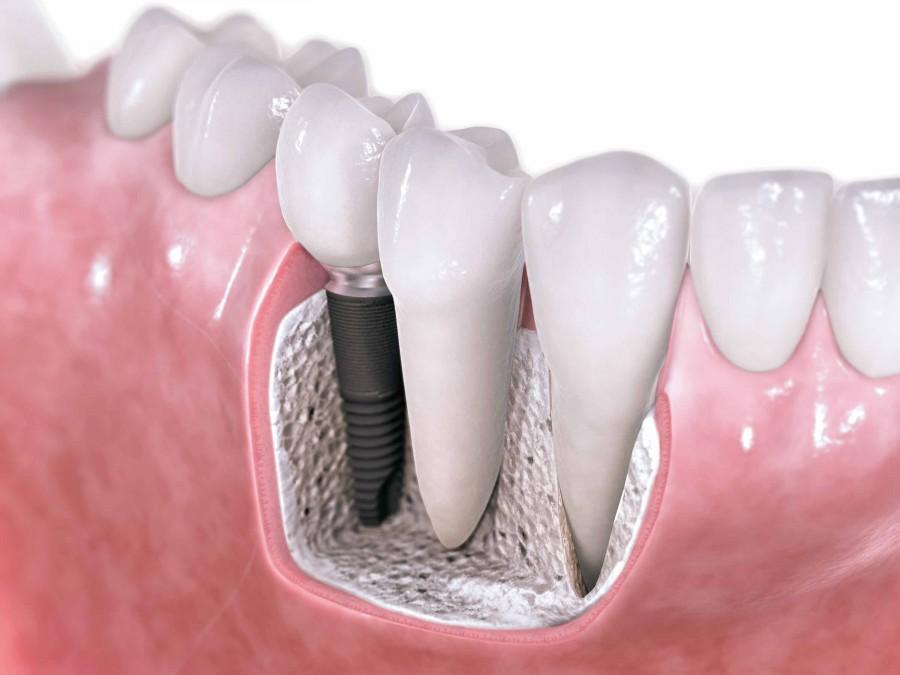 ¿Implantes dentales? Infórmate antes.