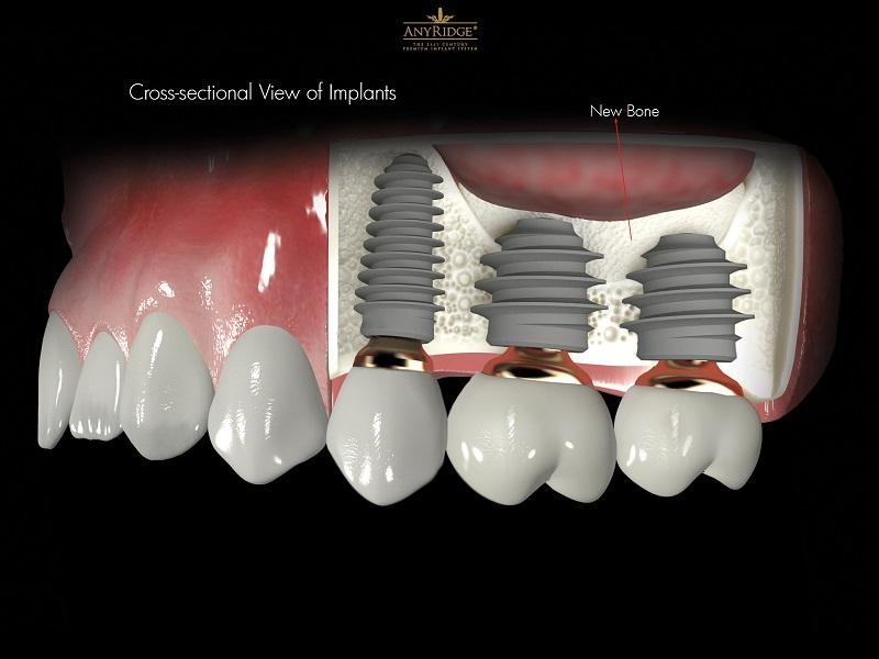 Implantes dentales, mitos y mentiras.