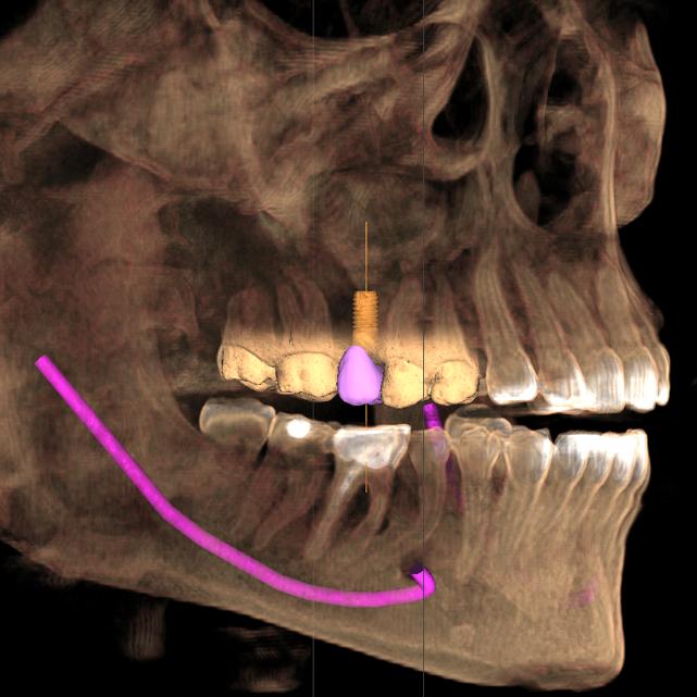 ¿TAC Dental? Lo último en Priego de Cordoba.